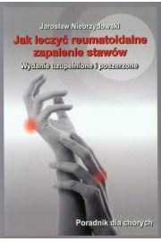 Jak leczyć reumatoidalne zapalenie stawów